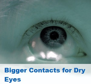 Post image for Get Bigger Contacts for Dry Eyes?