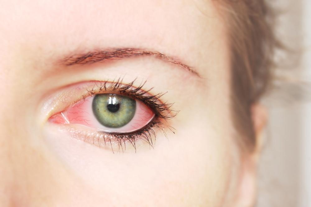 Eyelid Inflammation (Blepharitis) Treatment - WebMD